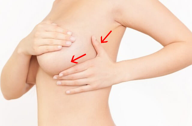 スペンス乳腺について説明するイメージ画像