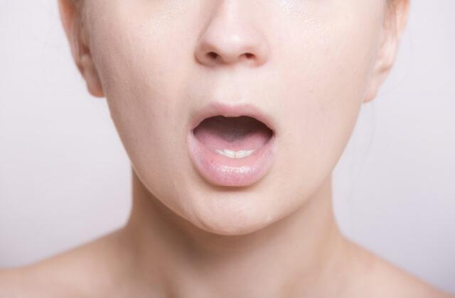 口臭の原因を説明している様子の画像